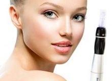 Week 6 aanbieding: Cosmetische dermapen behandeling gelaat.