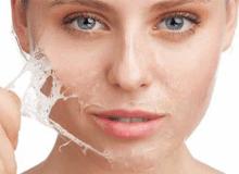 Volledige huidverbetering in 1 uur